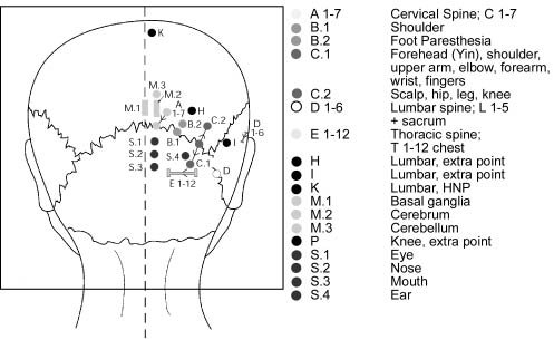 acupuntura cranel YNSA terapia para el tratamiento del dolor