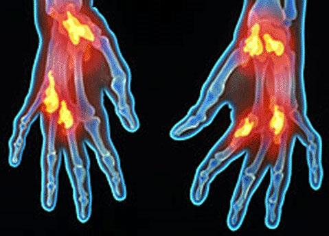 Ultrasonidos tratamiento