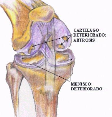 tratamiento de artrosis en rodilla