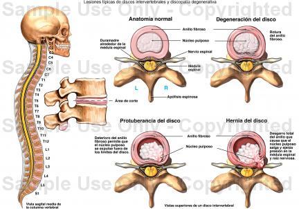 tratar lesiones discales con apiterapia acupuntura y naturopatia